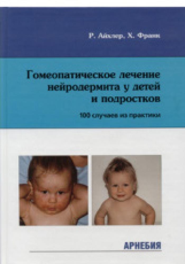 Лечение нейродермита краснодар
