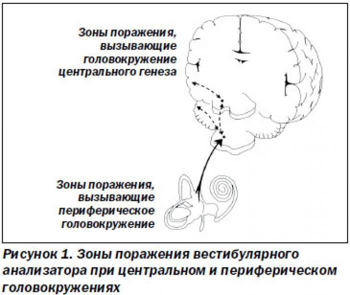 Что такое несистемное головокружение и как лечить