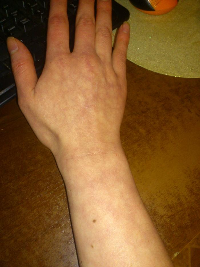Аллергия кожа как мраморная