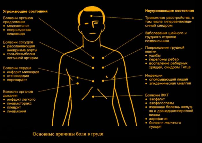 Что может болеть в груди слева